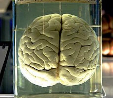 220px-Chimp_Brain_in_a_jar